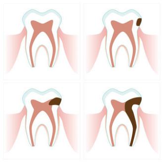 schematisch gezeichneter Verlauf einer Karies, die schließlich den Zahnnerv absterben lässt.