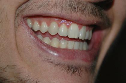 So sieht gesundes Zahnfleisch aus.